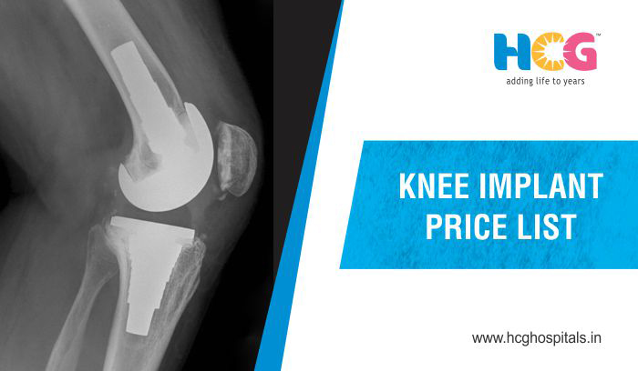 Knee Implant Price List